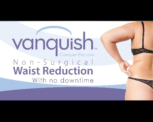 Blog Banner Vanquish